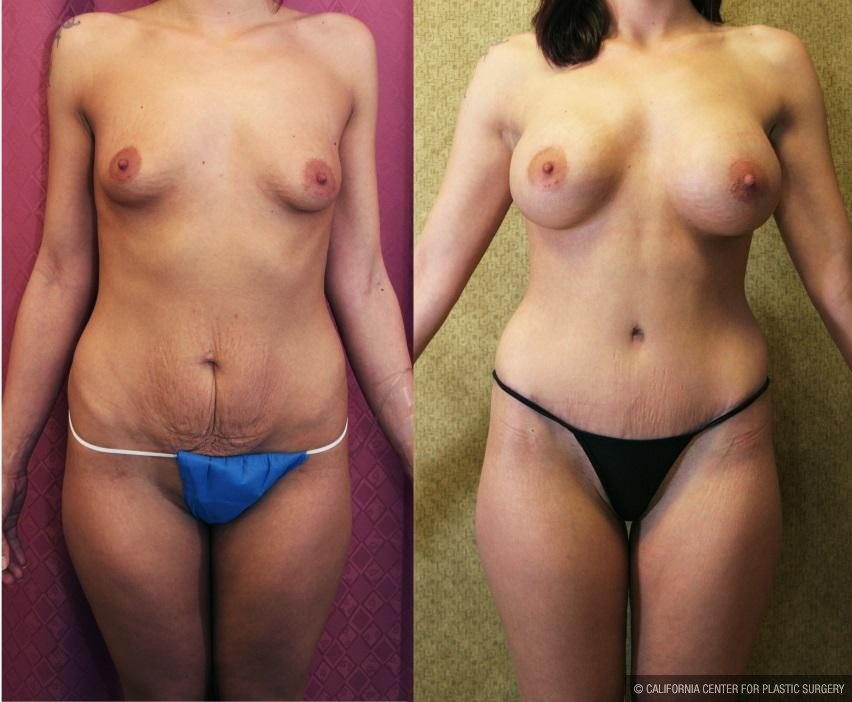Tummy Tuck Scars Before & After Patient #11114