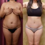 Tummy Tuck Scars Before & After Patient #11110