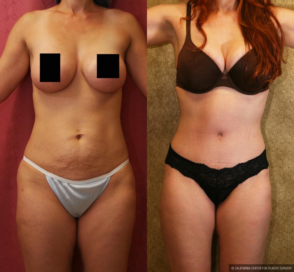 boob Plastic lift surgery