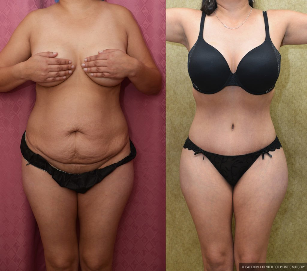 Tummy Tuck Medium Size Before & After Patient #11523