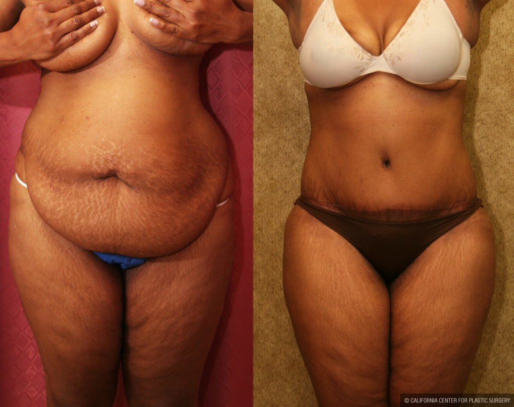 Tummy Tuck Plus Size Before & After Patient #11551