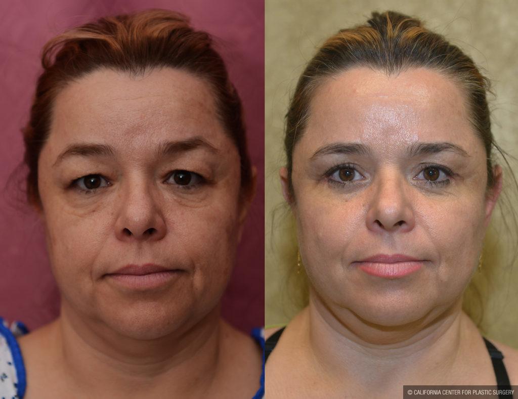 Eyelid (Blepharoplasty) Before & After Patient #11452