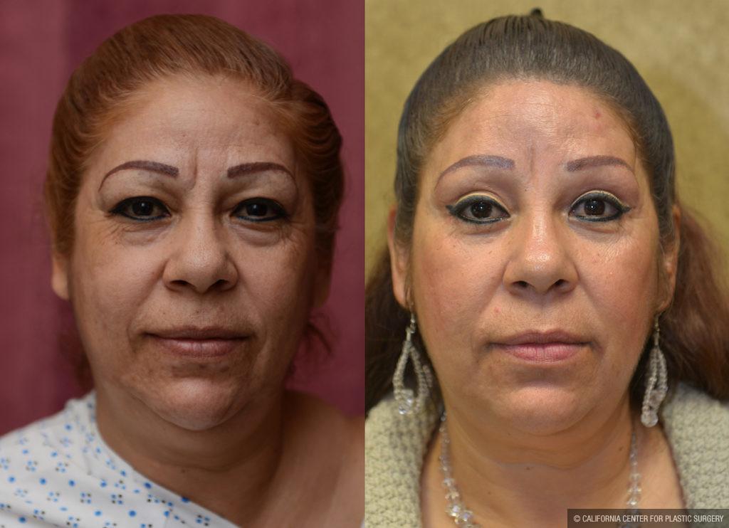 Eyelid (Blepharoplasty) Before & After Patient #11461