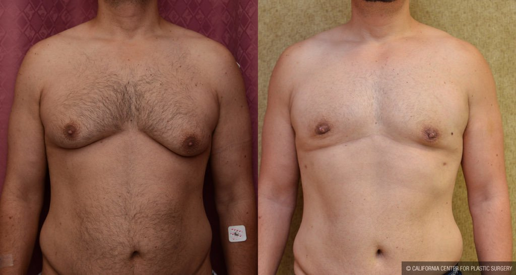 Male Breast Reduction Before & After Patient #11465