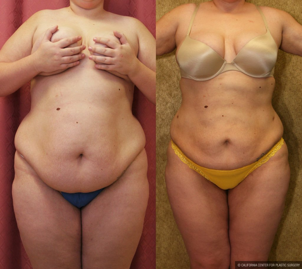 Liposuction Abdomen Plus Size Before & After Patient #11469