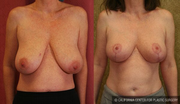 Full Breast Lift Before & After Patient #11805