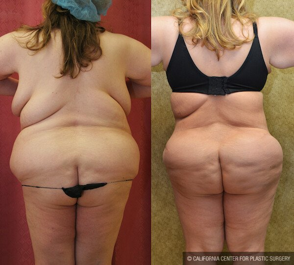 Buttock Lift/Augmentation Before & After Patient #11821
