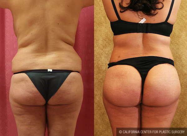 Buttock Lift/Augmentation Before & After Patient #11823