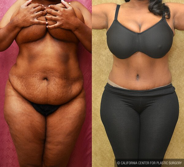 African American Tummy Tuck Before & After Patient #11880