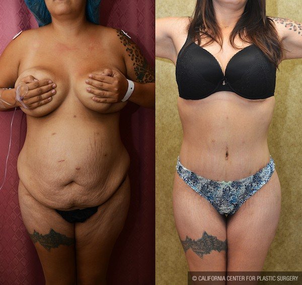 Tummy Tuck Medium Size Before & After Patient #11927