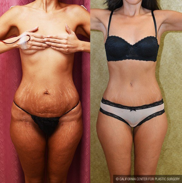 Tummy Tuck Small Size Before & After Patient #11939