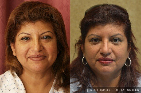 Eyelid (Blepharoplasty) Before & After Patient #11831