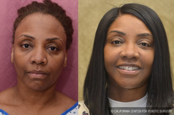 Mid-Facelift Before & After Patient #11836