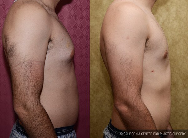 Male Breast Reduction Before & After Patient #11841