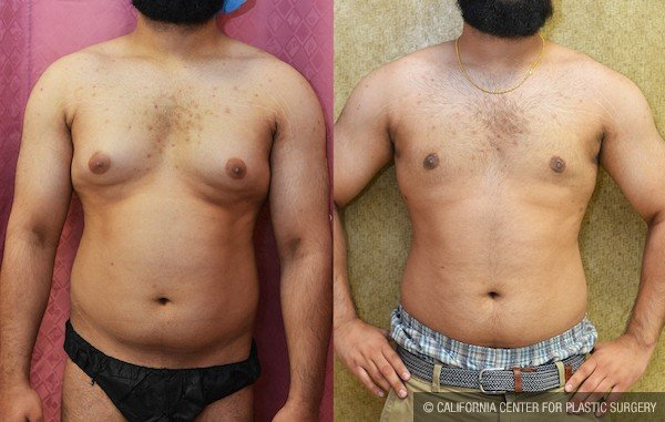 Male Breast Reduction Before & After Patient #11916