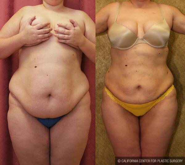 Liposuction Abdomen Plus Size Before & After Patient #11861