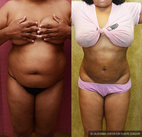 Liposuction Abdomen Medium Before & After Patient #11845
