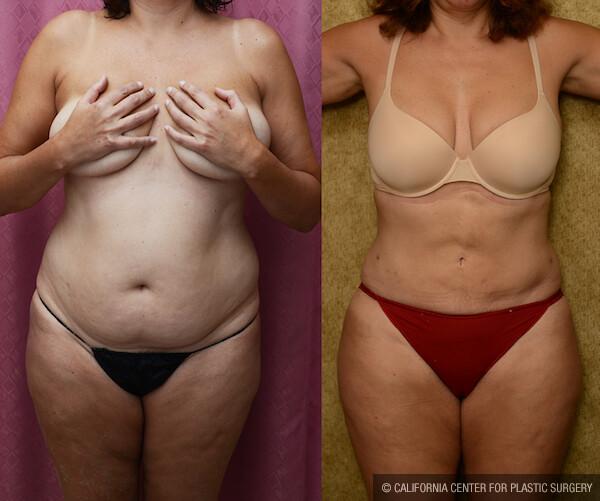 Liposuction Abdomen Medium Before & After Patient #11849