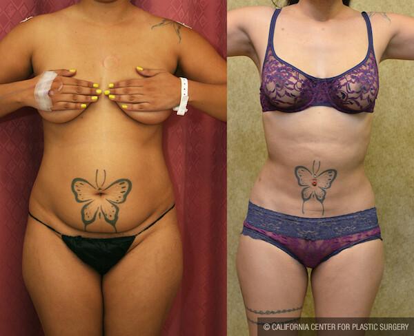Liposuction Abdomen Medium Before & After Patient #11853