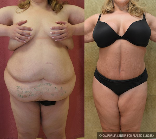 Tummy Tuck Plus Size Before & After Patient #12067
