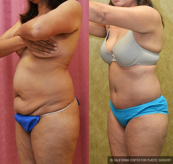 Tummy Tuck Small Size Before & After Patient #12076