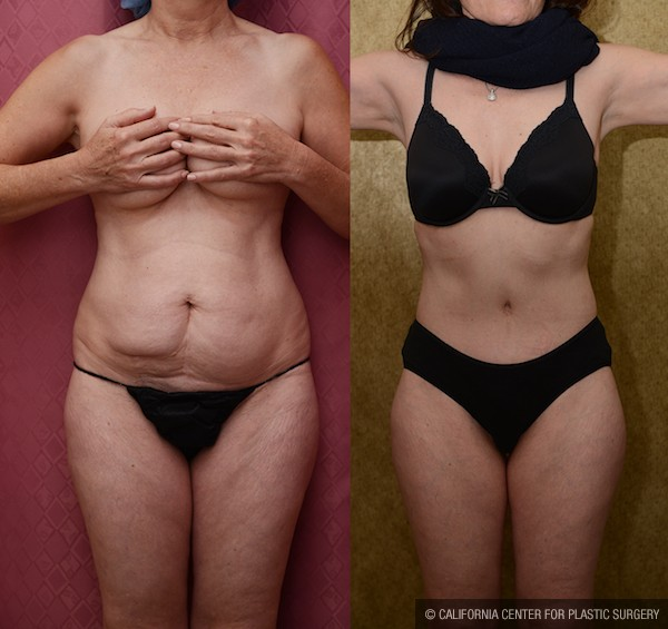 Tummy Tuck Small Size Before & After Patient #12080