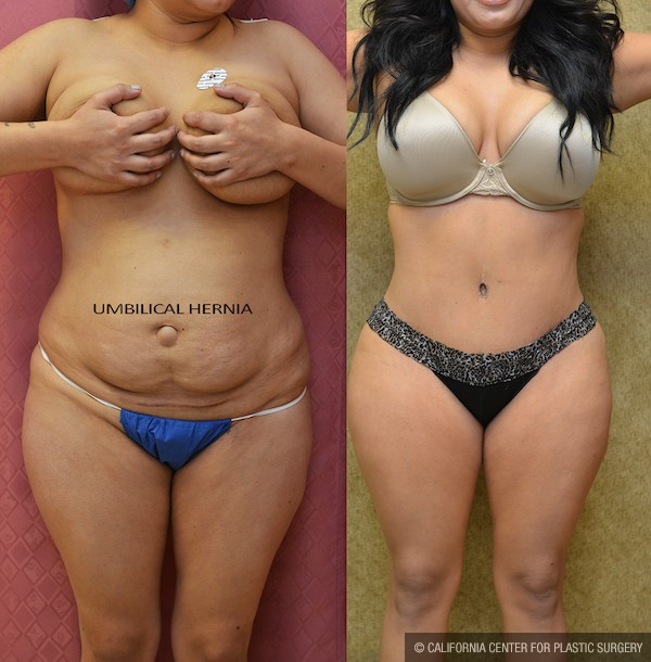Tummy Tuck Small Size Before & After Patient #12084
