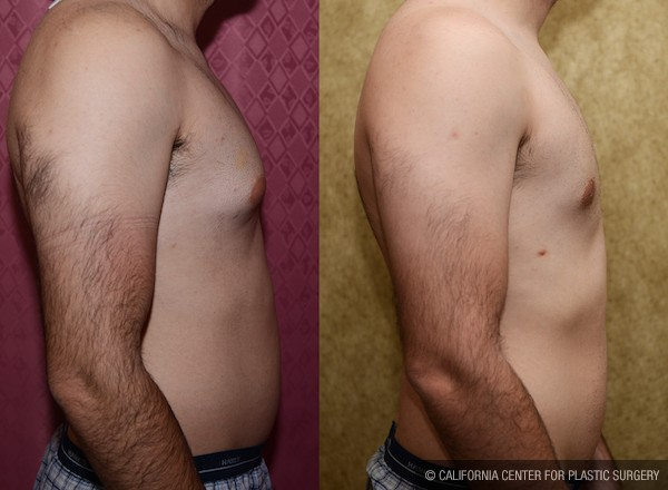 Male Breast Reduction Before & After Patient #11984