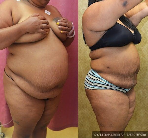 Liposuction Abdomen Plus Size Before & After Patient #12008