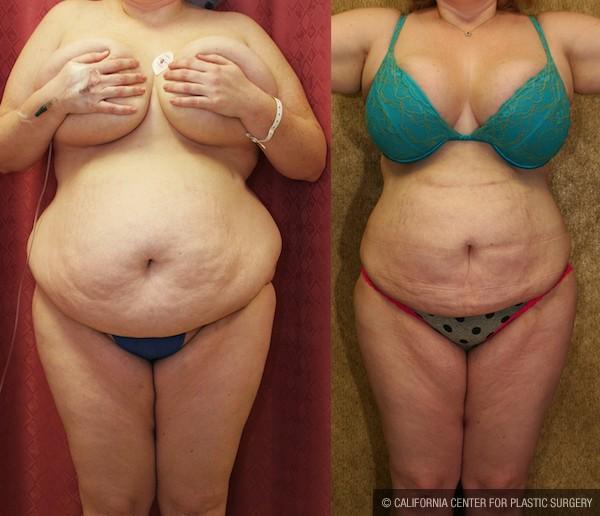 Liposuction Abdomen Plus Size Before & After Patient #12004