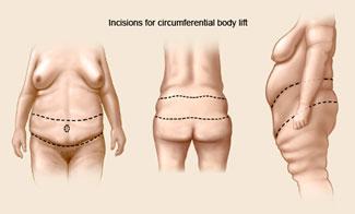 Female nipple reduction surgery