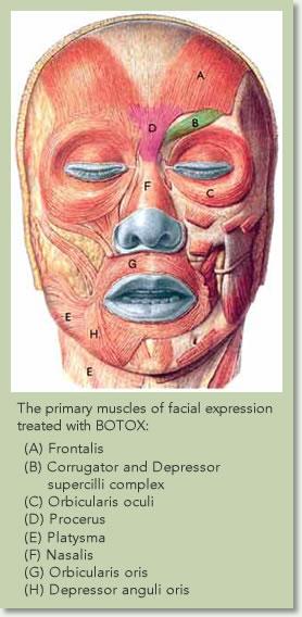 Best Botox Cosmetic Los Angeles & Beverly Hills | Sean ...