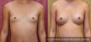 breast augmentation fat transfer before and after photo