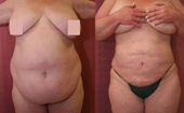 Liposuction Abdomen Plus Size Women Before & After