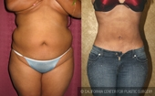 Liposuction Abdomen Medium Size Women Before & After