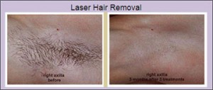 laser_hair_removal_2