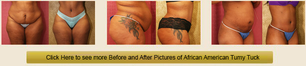 tummy tuck after care instructions